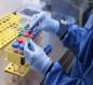 كيف يصيب فيروس كورونا الإنسان؟ خبراء يجيبون